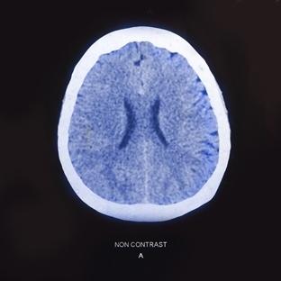 Beyin Emarı Sayesinde Gelecek Tahmin Edilebilir