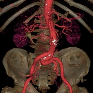 GE süper hızlı tomografi ile hayat kurtarıyor!