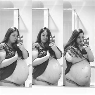 Üçüz Bebek Bekleyen Çiftin Cesur Seçimi