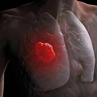 Bu Belirtiler Akciğer Kanseri Habercisi