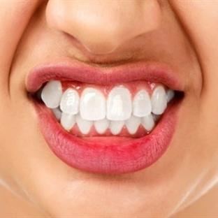 Diş Gıcırdattığınızı En Kolay Nasıl Anlarsınız?