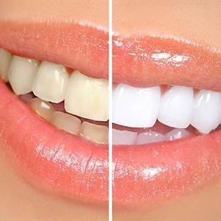 Dişlerini beyazlatmak isteyenler dikkat