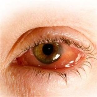 Göz Nezlesi Nedir, Belirtileri ve Tedavisi