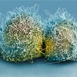 Kanser doğuştan mı?