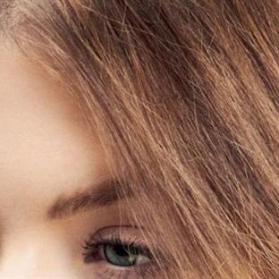 Saç neden kepeklenir?