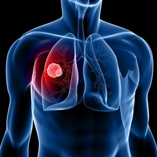 Akciğer Tümörüne Nano Parçacıklarla İlaç Taşındı