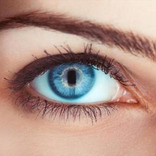 Mavi Gözler, Üstelik Kalıcı Olarak Mümkün