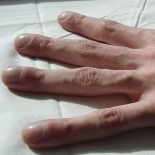 Parmaklarınızdaki Değişimleri Dikkate Alın...