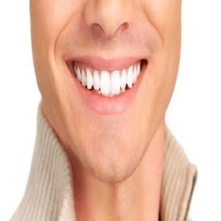 Bembeyaz gülüşler için laminate veneer