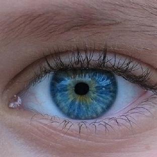Gözleriniz Bir Operayonla Maviye Dönüyor