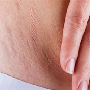 Hamilelik sonrası oluşan çatlaklardan kurtulun