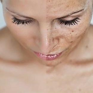 Hayalinizdeki cilde kavuşun