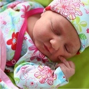 Yeni Doğan Sarılığı (Çocuk Hastalıkları) – Belirti