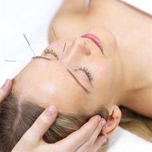 Akupunktur İle Neler Tedavi Edilebilir?