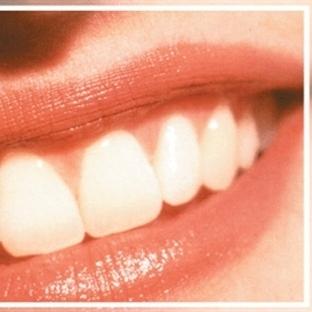 Diş İmplantı- Detaylı Bilgiler!