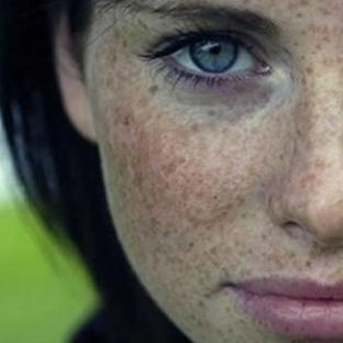 Çil Tedavisi – Doğal Çil Maskeleri