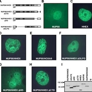 Akut Myeloid Lösemi Protein Freni Uygulandı
