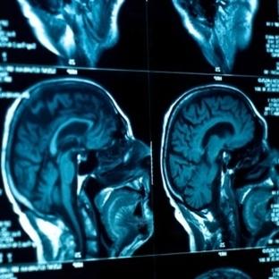 Beyin Tümörü Depresyona Neden Oldu