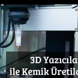 3D Yazıcılarla Sonunda Kemik de Üretildi
