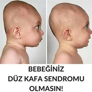 Bebeklerde Düz Kafa Sendromu
