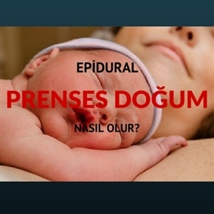 Epidural Normal Doğum (Prenses doğum) Nasıl Olur?