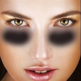 Göz Altı Morluklarının Nedenleri Nelerdir?