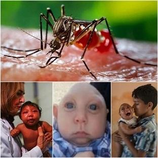 Zika Virüsü Dehşeti