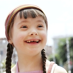 21 Mart Dünya Down Sendrom Farkındalık Günü - Bugü