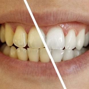 Beyaz Dişler İçin Bunları Tüketin