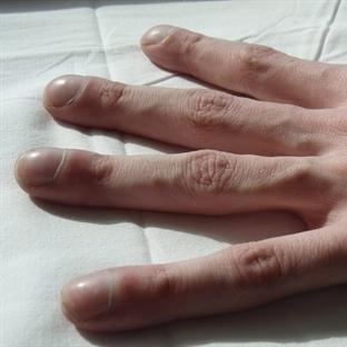 Parmaklarda Çomaklaşma Nedir?