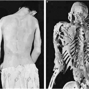 Bir Garip Hastalık: Taş Adam Sendromu
