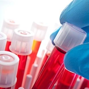 Kanser Tanısı İçin Kesin Yapılması Gereken Testler