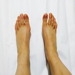 Tip-1 Diyabetlinin Podoloji (Ayak Sağlığı) Muayene