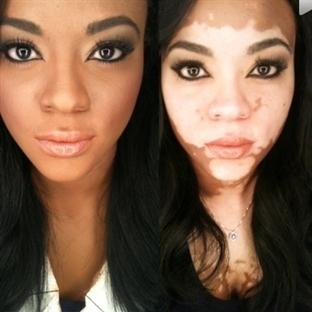Vitiligo Hastalığı Nedir ?