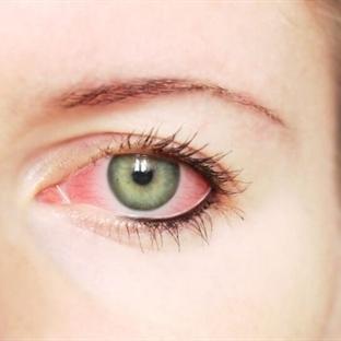 Göz Nezlesi Belirtileri Nelerdir?