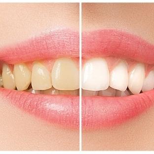 Diş Beyazlatmak İçin Kanıtlanmış 8 Doğal Yöntem!