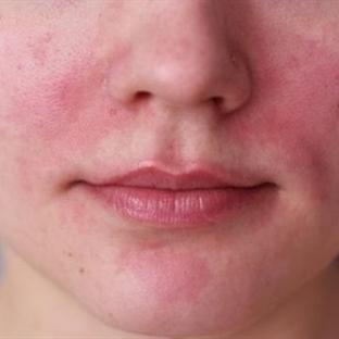 Roza ( Gül ) Hastalığı Tedavisi