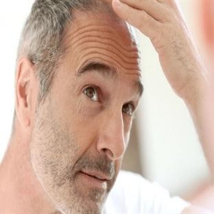 Saç Dökülmesi Çeşitleri Ve Tedavisi