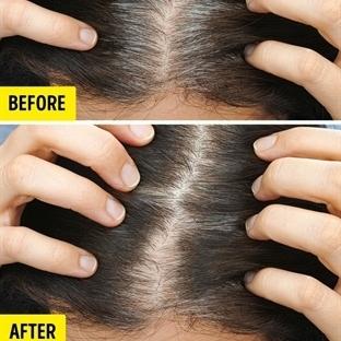 Bilimciler Saç Dökülmesinin Nedenleri