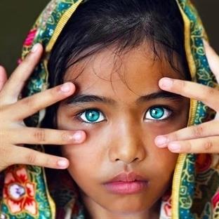 Peki Bunlar Renkli Gözse Bizimki Ne Oluyor?