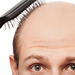 Saç Dökülmesinin 10 Nedeni