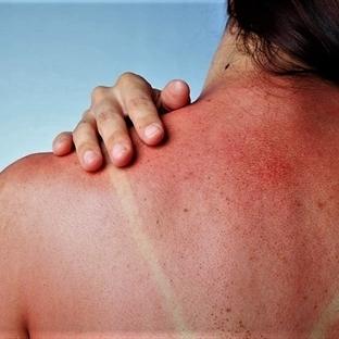 Güneş yanığı ve cilt lekelerine doğal tedavi