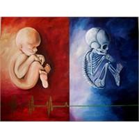 Doğum İle Ölüm Arasında