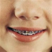 Ortodonti Hakkında Bilgiler