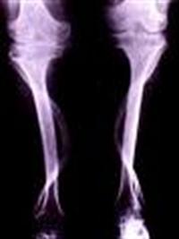 Gut Hastalığı İçin Bitkisel Tedavi