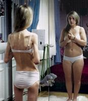Anoreksiya Nervosa Nedir ?-nasıl Tedavi Edilir