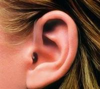 Kepçe Kulaklar İçin Estetik