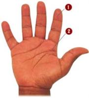 Kopan Parmak Nasıl Taşınmalı?
