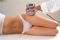 Liposuction - Yağ Aldırma