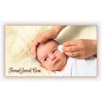 Bebeklerde Göz Çapaklanması Ve Tedavisi